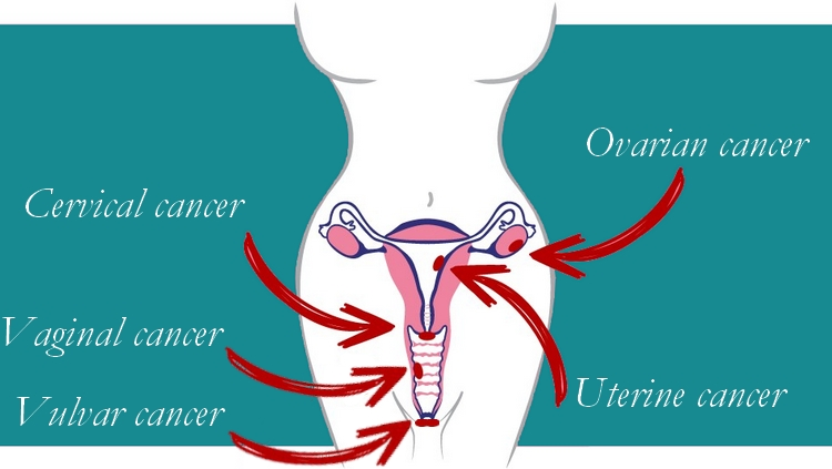 Gynecological Cancer Awareness – Female Reproductive Cancers