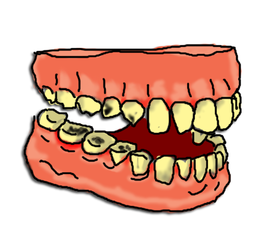 tooth decay cartoon clipart best Cartoon Tooth Outline Cartoon Tooth Outline