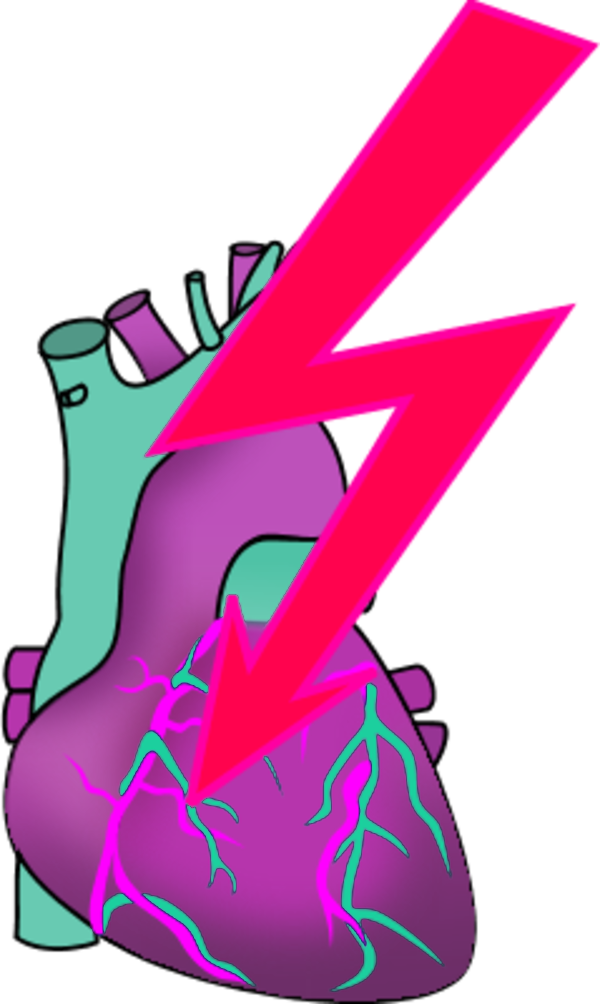 Heart Attack Clipart - ClipArt Best